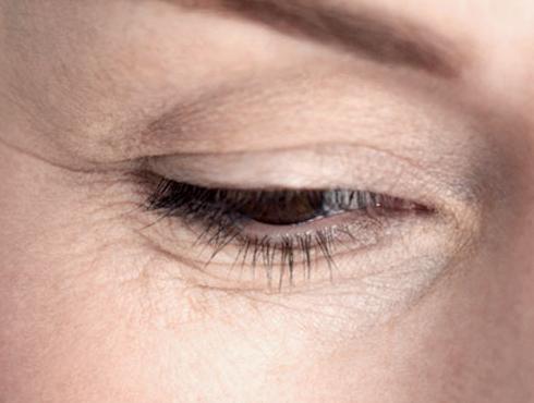 <h3>मोठ्या प्रमाणात डोळे चोळल्यानंतर</h3><br/><br>थकवा आल्यानंतर किंवा रोजच्या सवयीमुळे तुम्ही दिवसभरातून कित्येकदा जर डोळे चोळत असाल तर यामुळे सुद्धा तुमच्या चेहऱ्यावर सुरकुत्या येऊ शकतात. डोळे अधिक प्रमाणात चोळल्यामुळे डोळ्याच्या आसपासचे प्रथिन घटक नष्ट होऊन सुरकुत्या पडतात.<br>