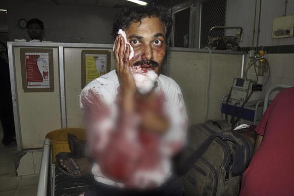 हैदराबाद स्फोटः जखमी उपचाराची वाट पाहताना