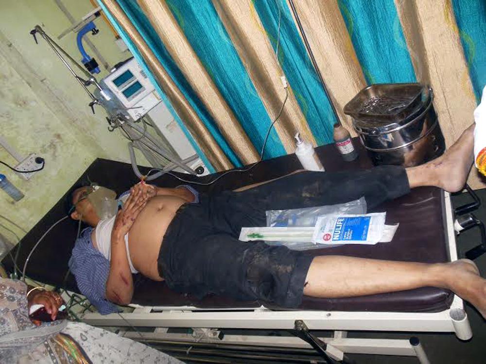 एसटी अपघातातील जखमी रुग्णालयात