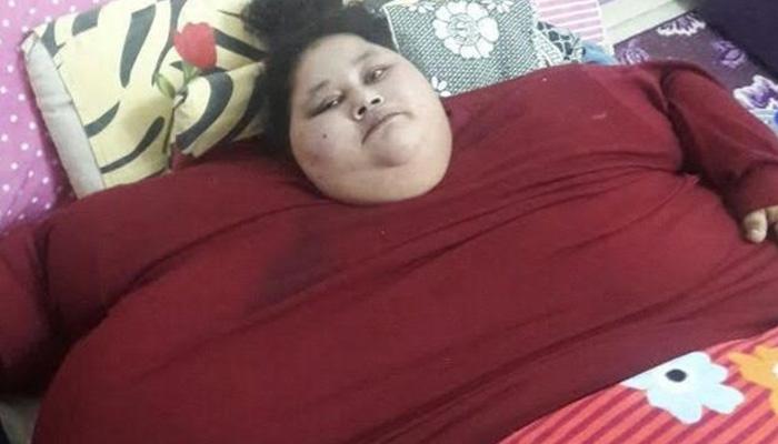 जगातील लठ्ठ महिलेचे ५ दिवसांत ३० किलो वजन घटवले