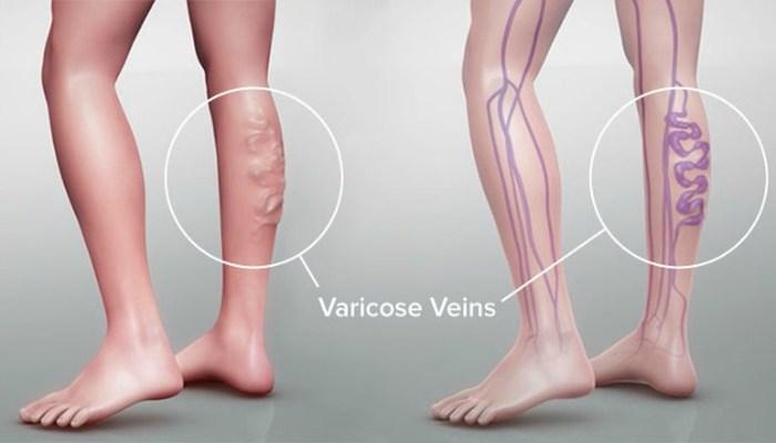 या '5' सवयी वाढवतात 'व्हेरिकोज व्हेन्स'चा धोका !