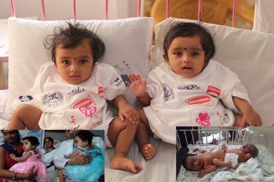 Image result for conjoined twins ridhi sidhi