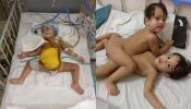 सयामी जुळ्यांना वेगळं करण्यात वाडीया रूग्णालयाला यश