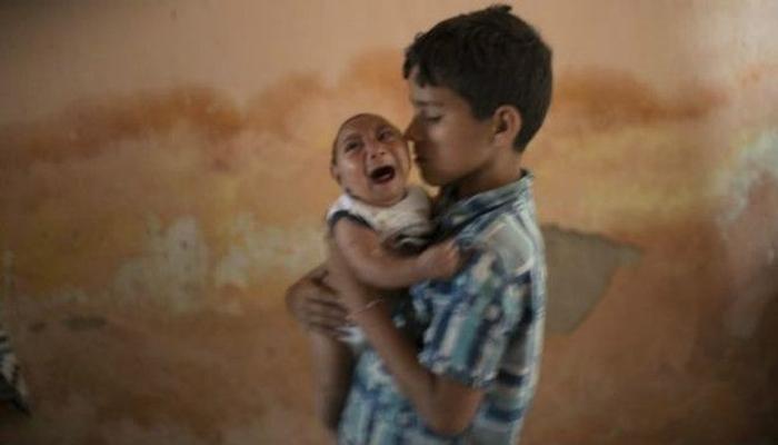 'झिका' वायरसनं ब्राझिलमध्ये जन्मतायत छोट्या डोक्याची बाळं!