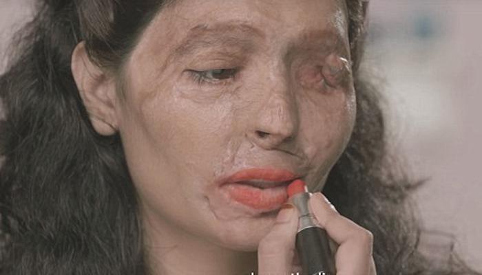 अनन्य व्यक्तीमत्व : मुंबईची रेश्मा बनली 'अॅन्ड अॅसिड सेल'चा चेहरा!