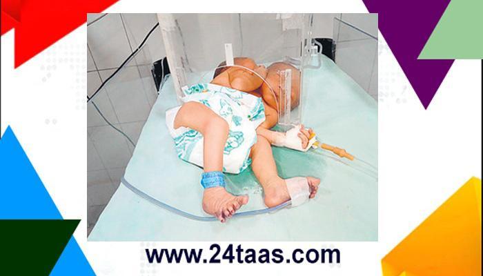 अजब... चक्क बाळाला चार फुप्फुसं आणि चार किडन्या