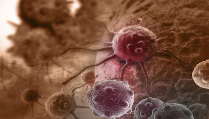 तरूण महिलांमध्ये कर्करोगाचे वाढते प्रमाण