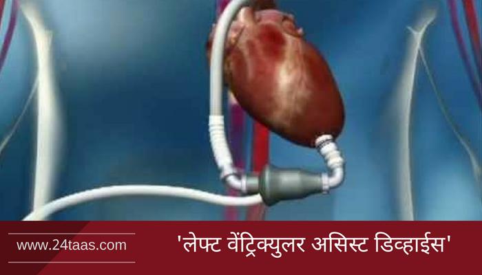 हृदय प्रत्यारोपणासाठी महाराष्ट्रात पहिल्यांदाच 'एल व्याड'