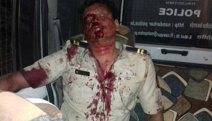 ड्युटीवर असणाऱ्या पोलिसावर हल्ला, गंभीर जखमी