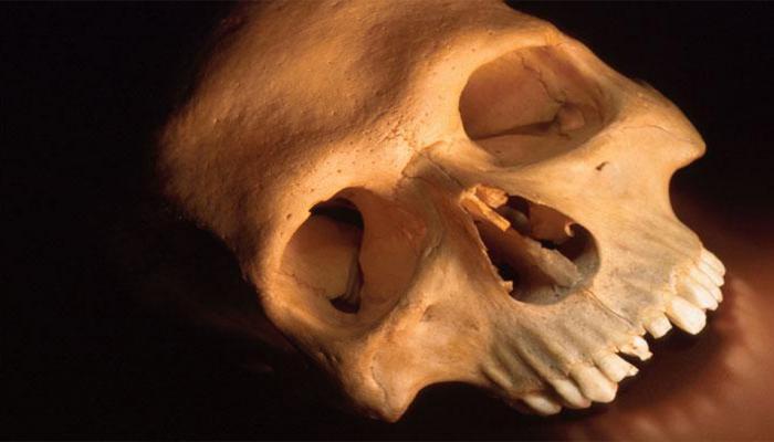 ६,००० वर्षांपूर्वीच्या मानवी कवटीचं रहस्य...