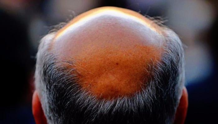 खूशखबर! केसगळतीवर रामबाण उपाय