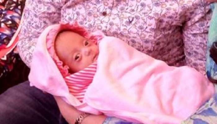 हैदराबादमध्ये जन्मलं सर्वात लहान बाळ, ४ महिनेआधीच प्रसूती