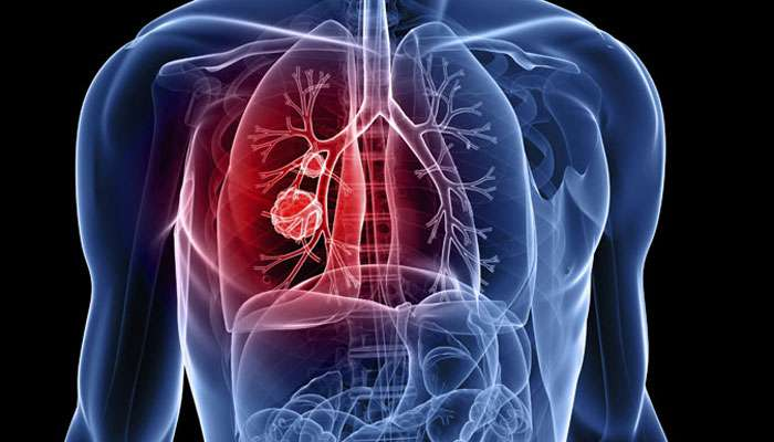 फुफ्फुसांच्या कॅन्सरचे 50% रूग़्ण नॉन स्मोकर्स, 'या' कारणांंमुळे बळावतोय कॅन्सर