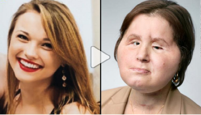 चेहरा प्रत्यारोपणानंतर आत्महत्येचा प्रयत्न केलेल्या 'केटी'ला मिळाले जगण्याची नवी संधी