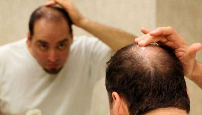 केसांची वाढ आणि केस मजबूत होण्यासाठी या 7 गोष्टी खाव्यात
