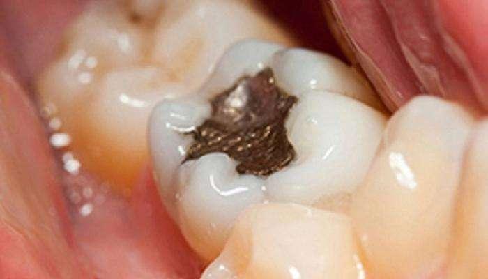 ५ मिनिटांत दातांची कीड काढण्याचा, घरगुती सोपा उपाय